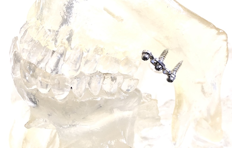 Castem metal injection molding